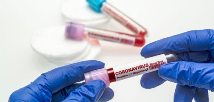11 Mayıs corona virüsü tablosu açıklandı! İşte vaka sayısı ve diğer kritik gelişmeler